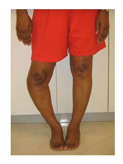 imagenes de rodillas dislocadas